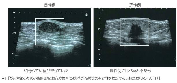 乳がん 検診 エコー マンモグラフィーとエコー、どっちを受けるべき?